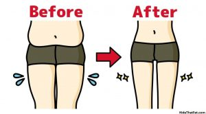 love handles before and after